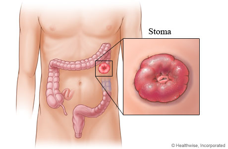 Me And My Stoma
