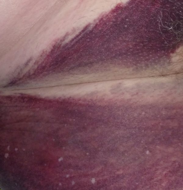 cardiac catheterization groin bruise.