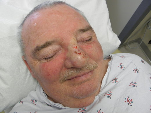 basal cell carcinoma and squamous cell carcinoma