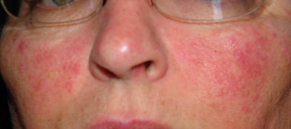 rosacea rash